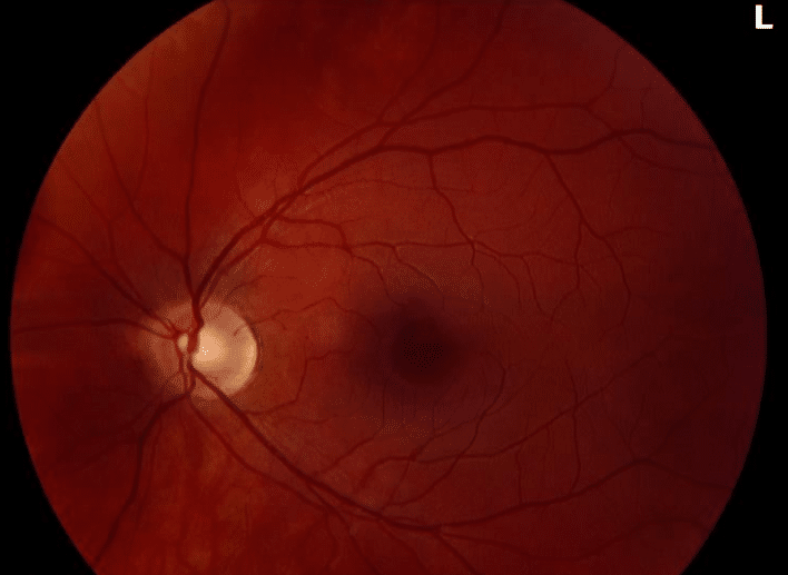 Left Eye Fundus Appearance