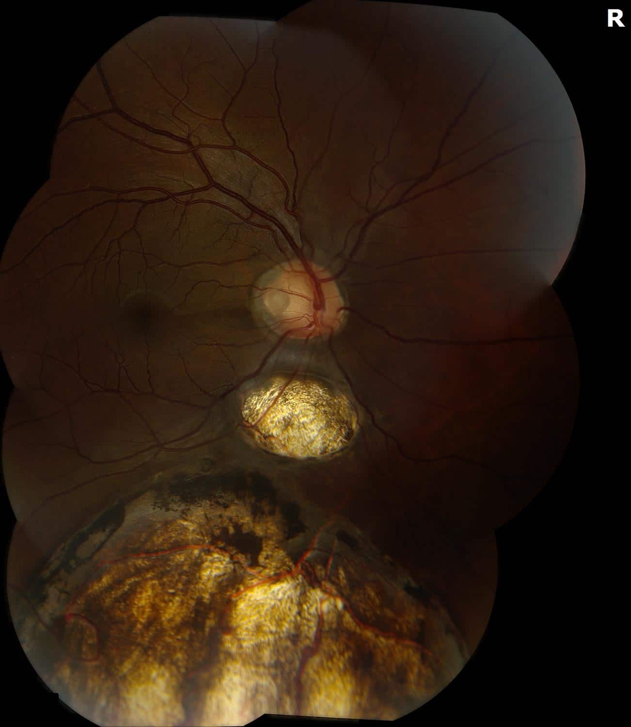 Abnormal Retinal Appearance