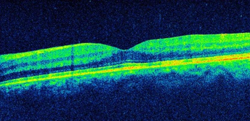 Birdshot Chorioretinopathy