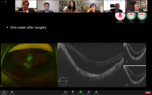Dr. Rezaei Retina World Congress 2020 screenshot