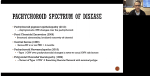 Pachychoroid spectrum of disease screen shot