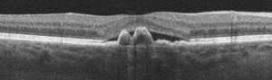 Pachychoroid spectrum OCT