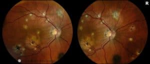 """epiretinal membrane and multiple punched out """"POHS-type"""" lesions"""